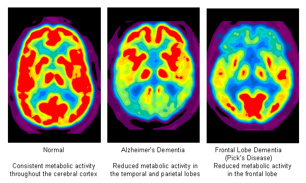Scan of a normal brain, one with Alzheimer's Dementia and with Frontal Lobe Dementia (Pick's Disease)